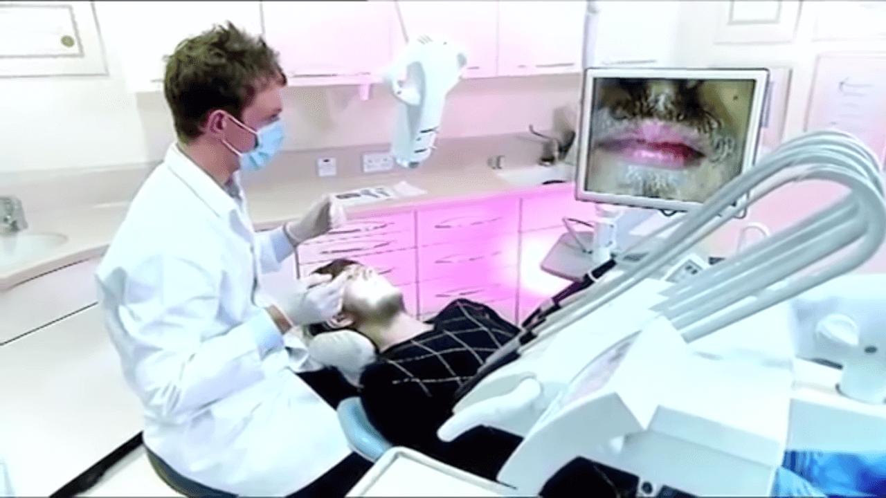 20年間歯磨きをしない男性
