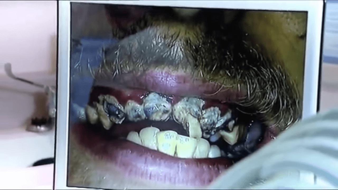 20年間磨いていない歯