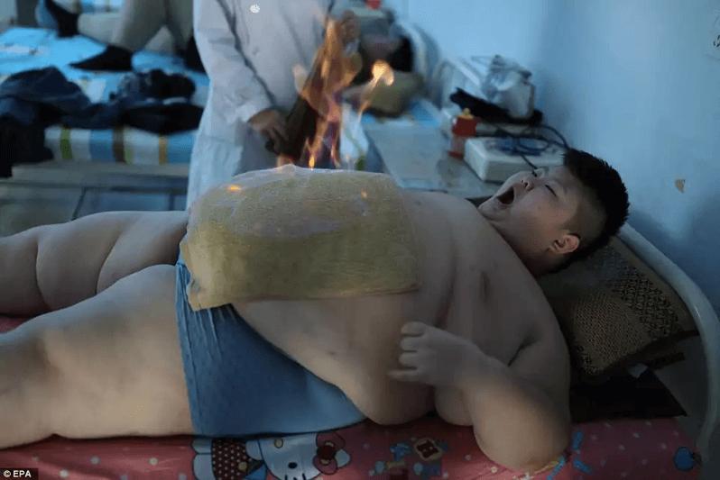 中国のダイエット治療