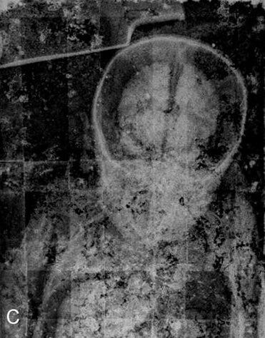 ロザリオ・ロンバルドのレントゲン写真