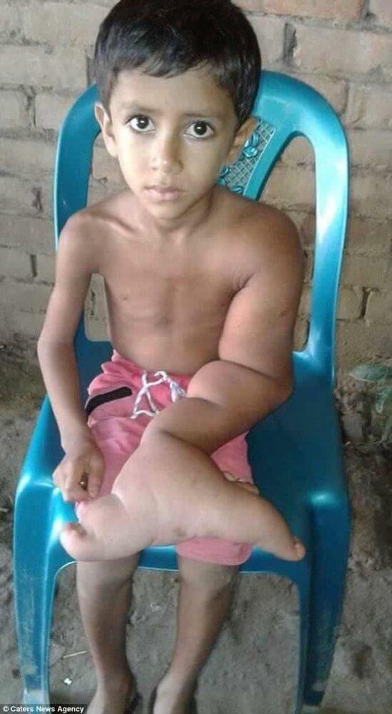象皮病の少年-Tajbir Akhtar君5歳