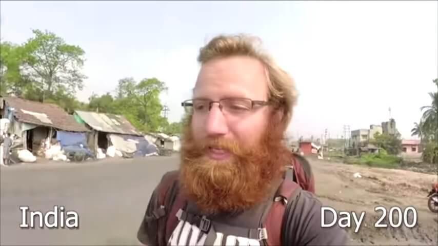 髭を2年半剃らなかった男性-200日目