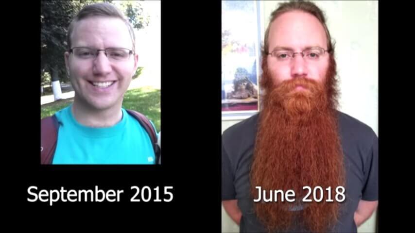 髭を2年半剃らないとこうなる